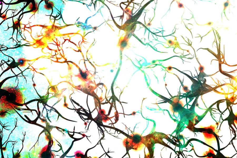 bigstock-Brain-cells-with-electrical-fi-51670588